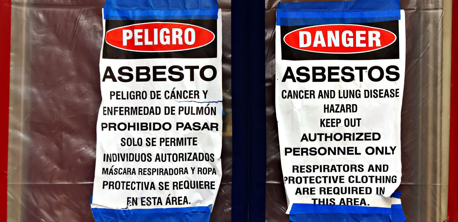 Asbestosis-What is it really? - Asbestos Abatement Services